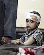 Kind in syrischem Krankenhaus
