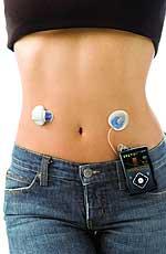 Insulinpumpensystem MiniMed 640G mit Sensor und Sender