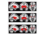 Veränderungen durch Placebo, Glukose und Fruktose im Belohnungssystem des Gehirns