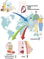 Körpergröße beeinflusst Erkrankungsrisiko wichtiger Volkskrankheiten