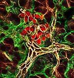 Betazellen der Bauchspeicheldrüse